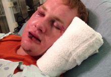 【外電】洋基小聯盟球員 Ty Hensley 被前美式足球球員攻擊