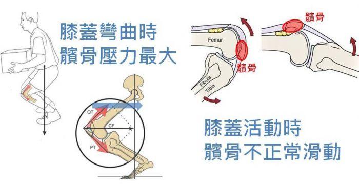#膝蓋痛 #髕骨股骨疼痛症 #髕骨外翻 #跑者膝 #復健運動